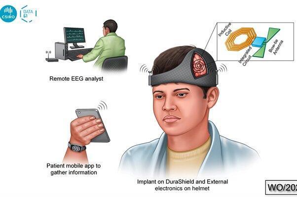 کلاه هوشمند از تشنج مغزی بعد از جراحی جلوگیری می&zwnjکند